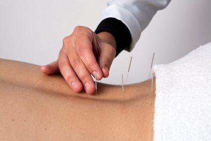 Tratamento com acupuntura para dor