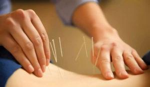 Tratamento com acupuntura em Canoas
