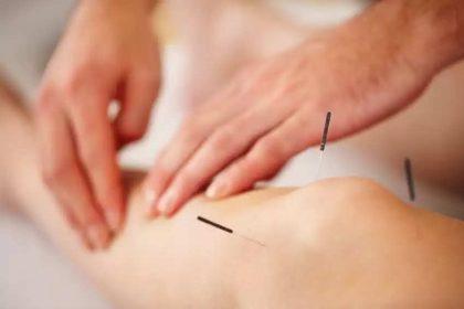 Benefícios do tratamento com a acupuntura 2