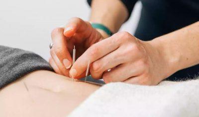 Tratamento com acupuntura pode auxiliar no esporte e nas provas 2